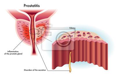 A prosztatagyulladás maestro Prosztata - REGEN50 Nutrilago®